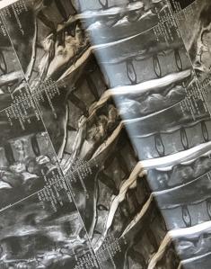 spine MRT