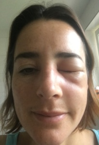 bee_sting_day2